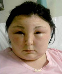 Carmen Rowe during her allergic reaction.
