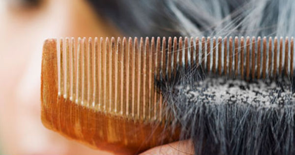 Remove Hair Product Build Up Naturally