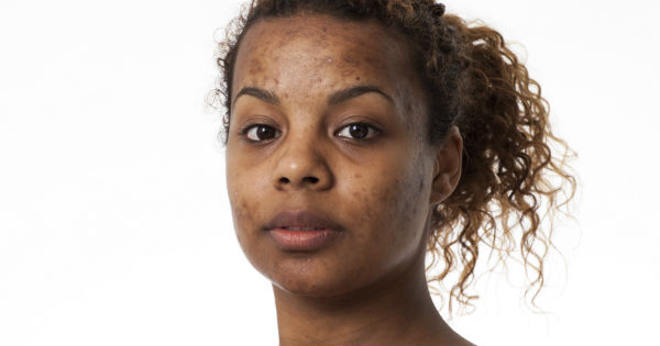 9 Hypoallergenic Shampoos For Sensitive Skin