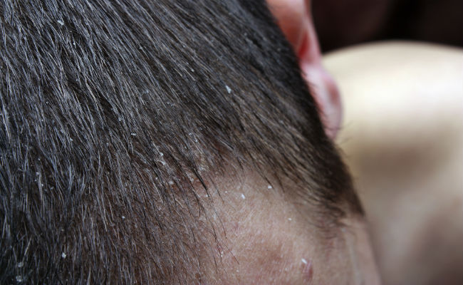 A Natural Way To Treat Scalp Psoriasis