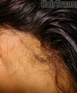 Do You Need Hair Plugs?