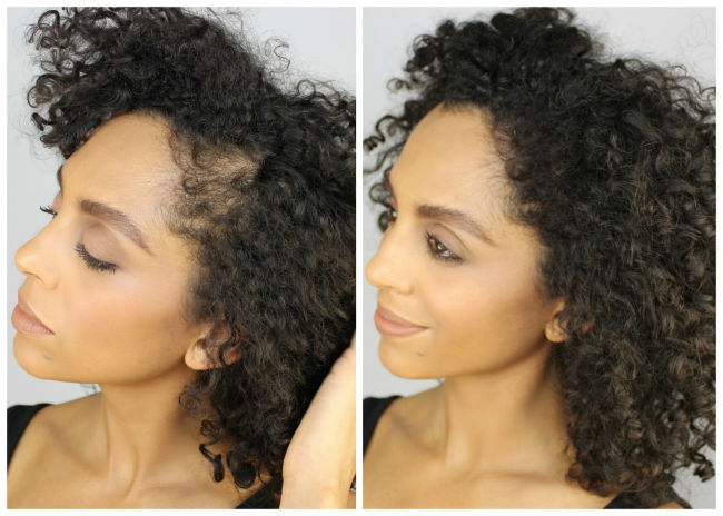 alopecia hair styles 2 easy hacks for hiding your traction alopecia 2168