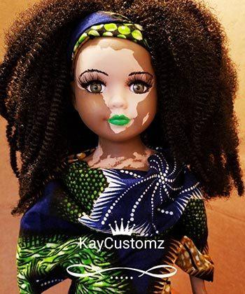 I Am a Full Grown Woman Who Loves Vitiligo Dolls